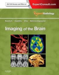 Imaging of the Brain