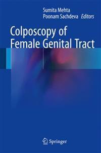 Colposcopy of Female Genital Tract