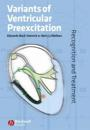 Variants of Ventricular Preexcitation: Recognition and Treatment