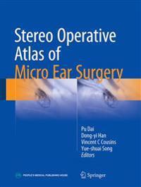 Stereo Operative Atlas of Micro Ear Surgery