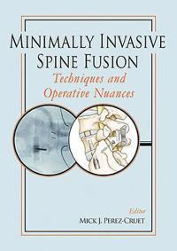 Minimally Invasive Spine Fusion