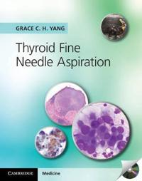 Thyroid Fine Needle Aspiration with CD Extra