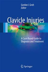 Clavicle Injuries