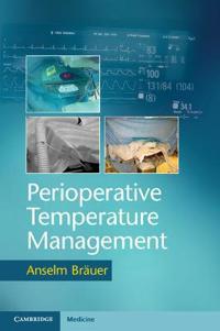 Perioperative Temperature Management