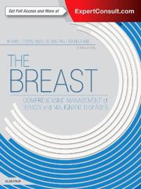 The Breast: Comprehensive Management of Benign and Malignant Diseases