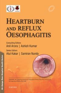 Sir Ganga Ram Hospital Health Series: Heartburn and Reflux Oesophagitis - e-book