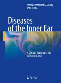 Diseases of the Inner Ear