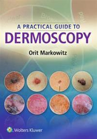 Practical Guide to Dermoscopy
