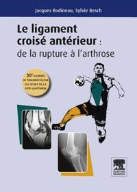 Le ligament croise anterieur : de la rupture a l'arthrose