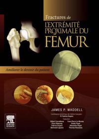 Fractures de l'extremite proximale du femur
