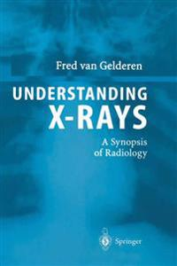 Understanding X-Rays