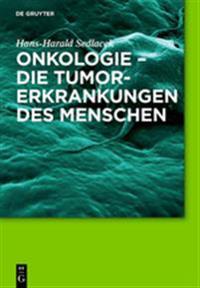 Onkologie - Die Tumorerkrankungen Des Menschen