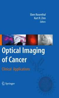 Optical Imaging of Cancer