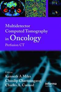 Multidetector Computed Tomography in Oncology CT Perfusion Imaging