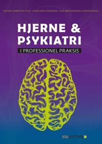 Hjerne & psykiatri