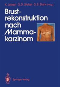 Brustrekonstruktion Nach Mammakarzinom