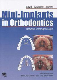 Mini-implants in Orthodontics