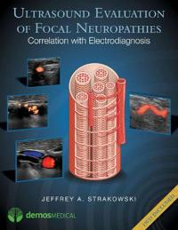 Ultrasound Evaluation of Focal Neuropathies