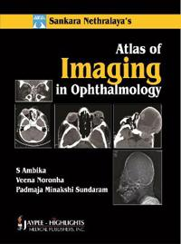 Sankara Nethralaya Atlas of Imaging in Ophthalmology