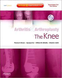 Arthritis & Arthroplasty