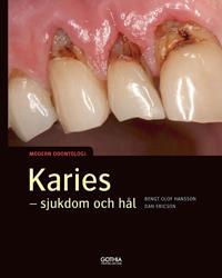 Karies : sjukdom och hål - Bengt Olof Hansson, Dan Ericson   Laserbodysculptingpittsburgh.com