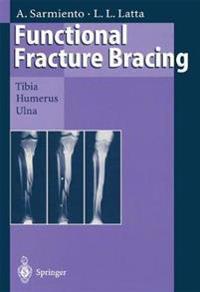 Functional Fracture Bracing