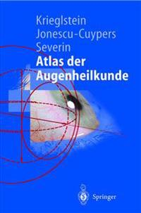 Atlas Der Augenheilkunde