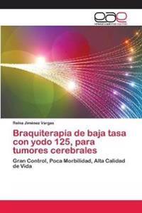 Braquiterapia de Baja Tasa Con Yodo 125, Para Tumores Cerebrales