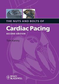 Nuts Bolts Cardiac Pacing 2e