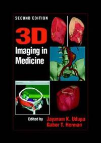 3D Imaging in Medicine