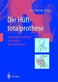 Die Hüfttotalprothese: Implantationstechnik Und Lokale Komplikationen