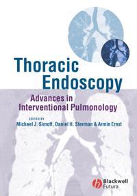 Thoracic Endoscopy: Advances in Interventional Pulmonology