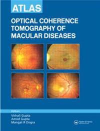 Atlas Optical Coherence Tomography Of Macular Diseases