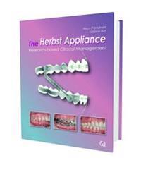 The Herbst Appliance