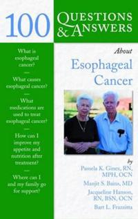 100 Questions and Answers About Esophageal Cancer