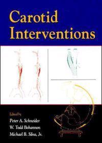 Carotid Interventions