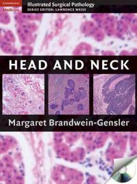 Head and Neck