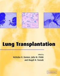 Lung Transplantation