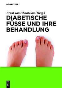 Diabetische Fusse Und Ihre Behandlung