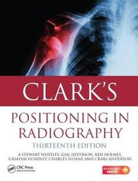 Clark's Positioning in Radiography