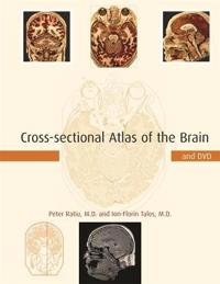 Cross-sectional Atlas of the Brain and DVD