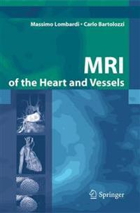 MRI Of The Heart And Vessels