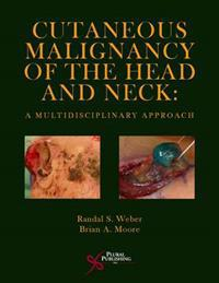 Cutaneous Malignancy of the Head and Neck