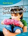 What Happens to Broken Bones?