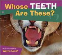 Whose Teeth Are These ?